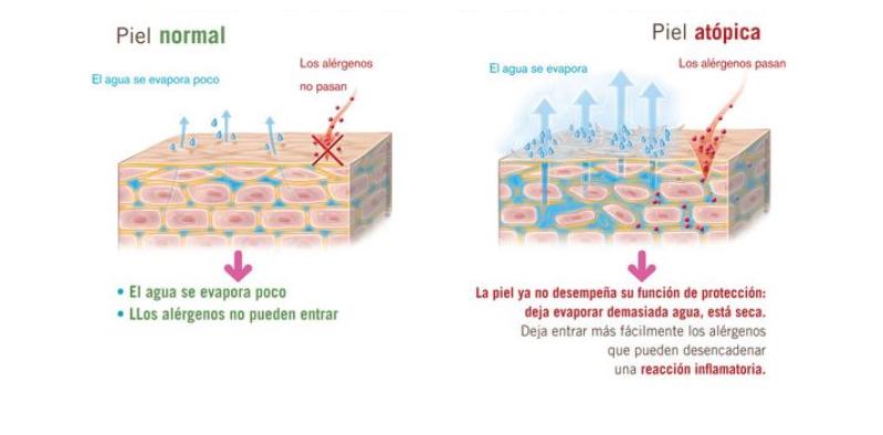 Estructura de una piel normal y una piel atópica.